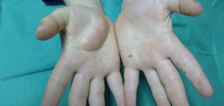 sarcomas treatment