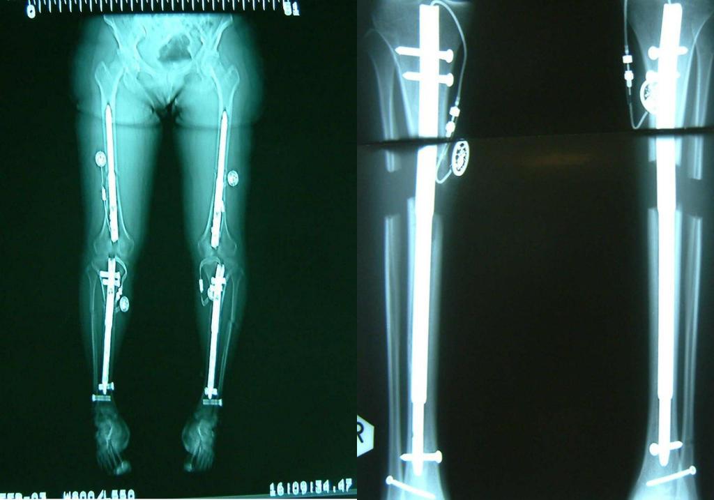 limb lengthening surgery